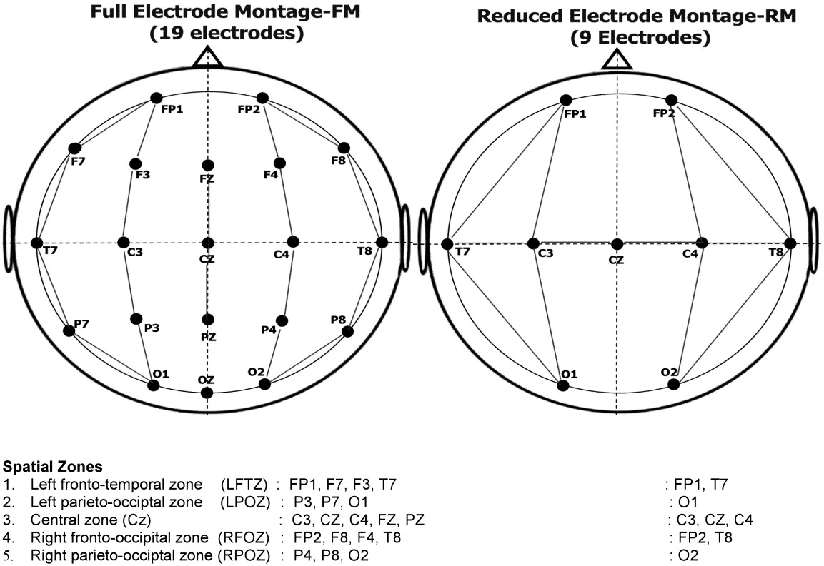 electroencephalography in neonatal seizures  comparison of a reduced and a full 10  20 montage